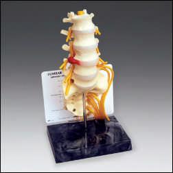 anatchart,model,spine,lumbar,vertebrae,vertebra,herniated,hernia,sacrum,pelvis,nerves,sciatic,disc,L4,L5