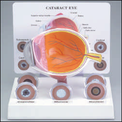 anatchart,model,eye,iris,pupil,retina,subcapsular,capsular,cortical,nuclear,cataracts,glaucoma