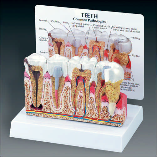 anatchart,model,skull,teeth,premolar,molar,tooth,gum,diseased,dental,abscess,periodontitis,cavity,crown,decay,gingivitis,plaque,bone