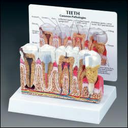 anatchart,model,skull,teeth,premolar,molar,tooth,gum,diseased,dental,abscess,periodontitis,cavity,crown,decay,gingivitis,plaque,bone