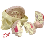 anatchart,model,brain,cerebral,occipital,termporal,lobes,cerebellum,parts,diseased,alzheimer