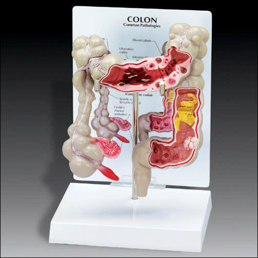 anatchart,model,digestive,colon,intestine,large,colitis,diverticulitis,diverticulosis,bacterial,infection,cancer,spastic,polyp,appendix,rectum