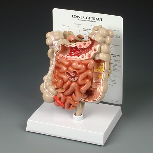 anatchart,model,GI,intestine,digestive,tract,adhesion,appendicitis,bacterial,infection,cancer