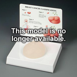 anatchart,model,breast,cancer,lump,tumor,growth,lifelike,examination