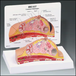 anatchart,model,breast,cross,section,scirrhous,carcinoma,fibroadenoma,cyst,adenocarcinoma,suspensory,ligament,fat,tissue,lymph,muscle,ribs