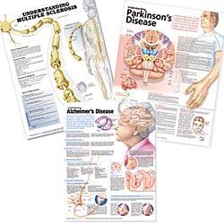 anatchart,chart,nervous,system,nerves,spinal,spine,back,neurology,set,brain,multiple,sclerosis,parkinson