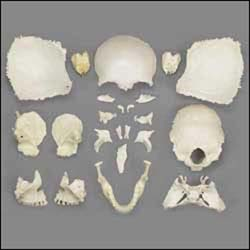 anatchart,model,skull,disarticulated,parts,dissects,dissectible,dismantled,reconstructed,occipital,temporal,bones,parietal,frontal,ethmoid,maxilla,facial,maxillary,cranial,zygomatic,mandible,joints,assemble,female